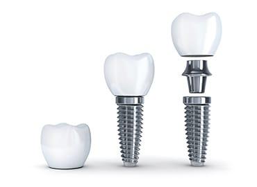 implantoloji